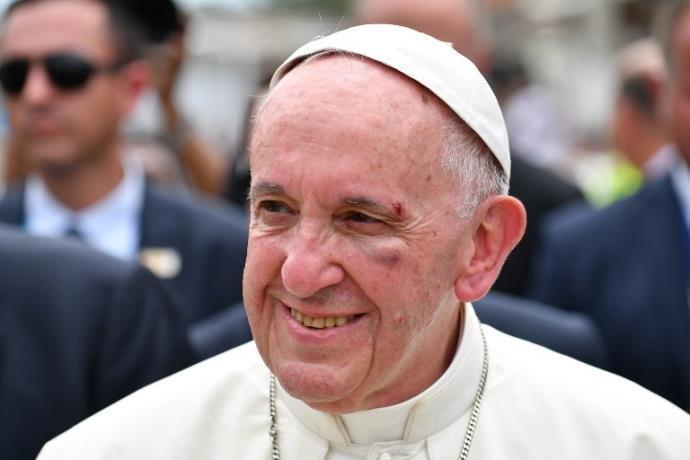Papa Francisco termina visita à Colômbia com ferimento no olho após queda